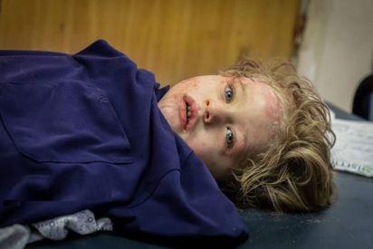 أطفال غزة يدفعون ثمن أنهم فلسطينيون